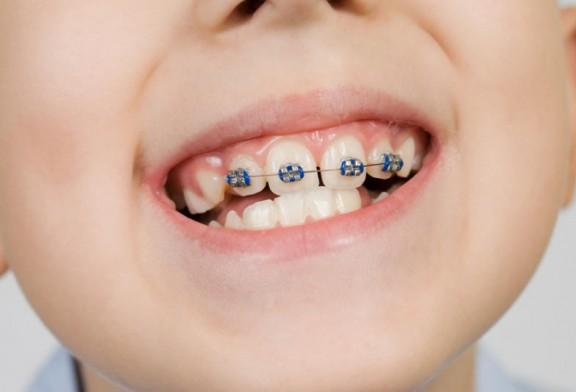 Aparat ortodontic copii