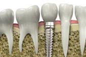Implant dentar de la Tinka Smile